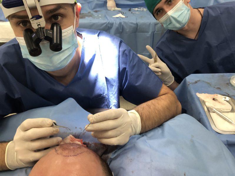 chirurgiczny przeszczep włosów w Kielcach